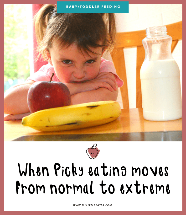 "Main image for the article: ""When picky eating moves from normal to extreme"". Pictured is a toddler at the table looking unhappy with an apple, banana, and milk in front of them."